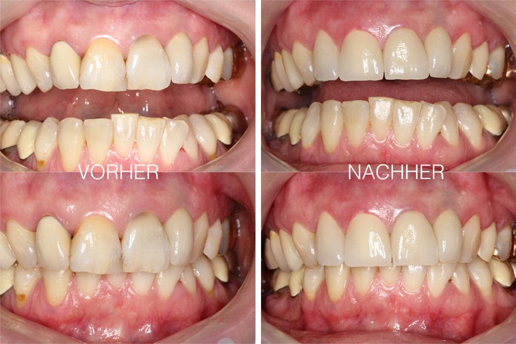 Vorher Nachher Bild Zahnersatz